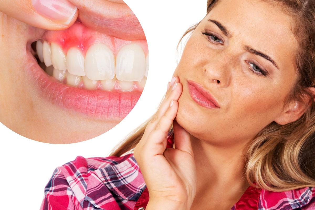 dentista-dentologies-gengivitis-madrid-1200x800.jpg