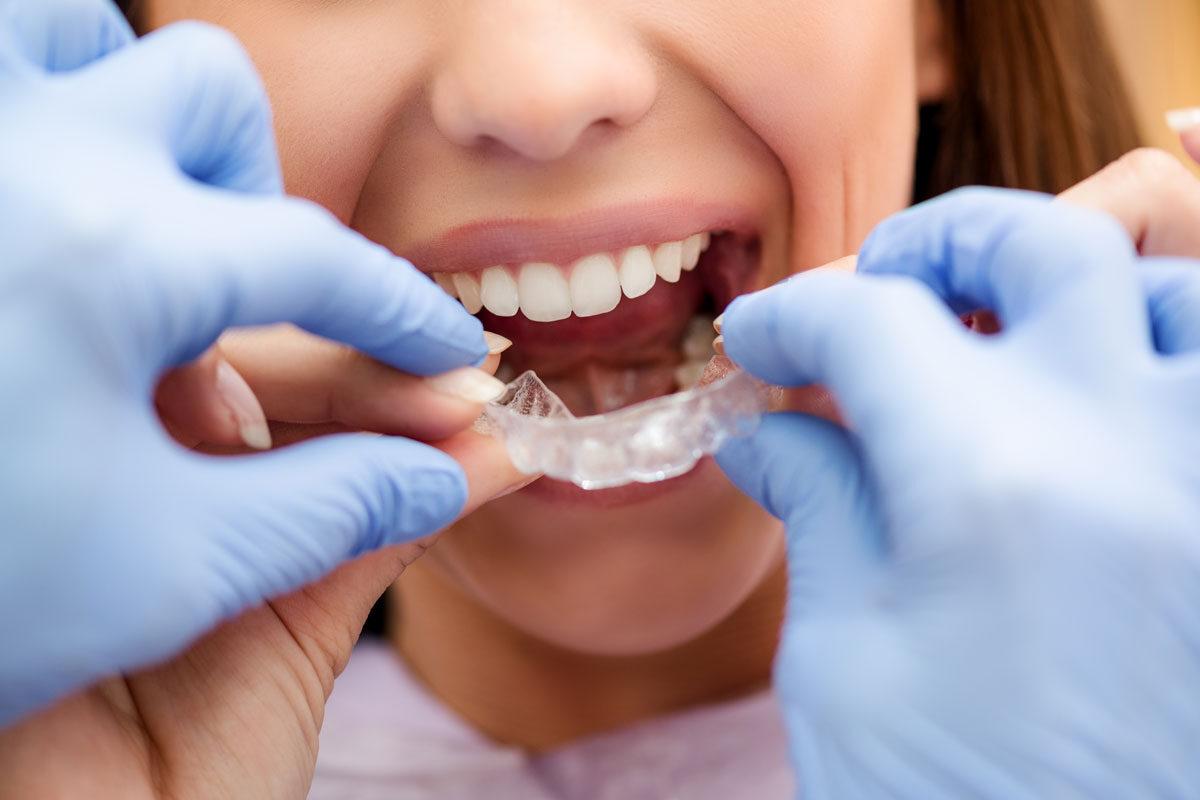 dentista-dentologies-Invisalign-Diamond-Provider-madrid-1200x800.jpg