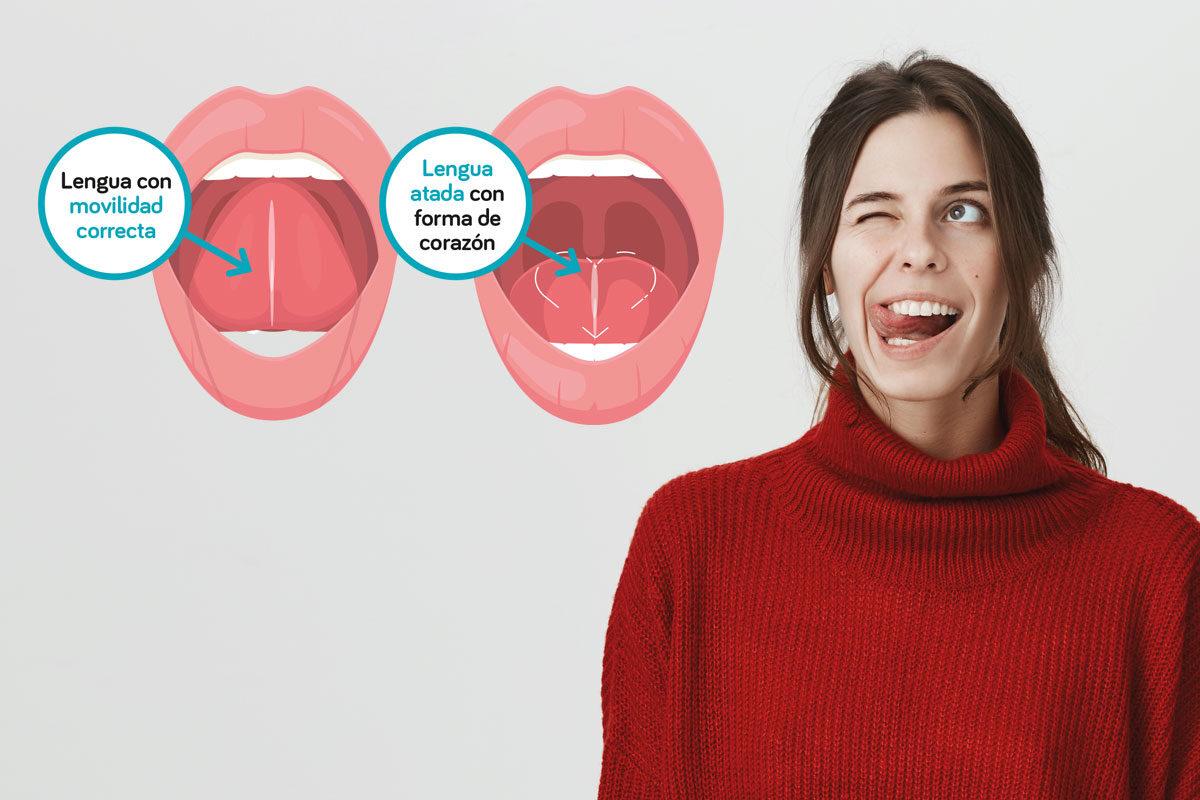 dentista-dentologies-frenillo-lengua-dental-1200x800.jpg